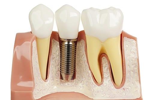 Implants cross-section